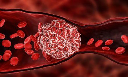 Trombocitopenia e trombosi immunitarie indotte da vaccino (VITT)